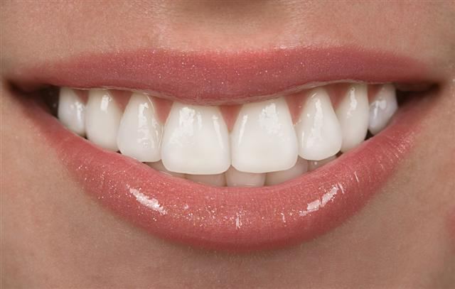 Kết quả hình ảnh cho Veneer porcelain crowns the teeth